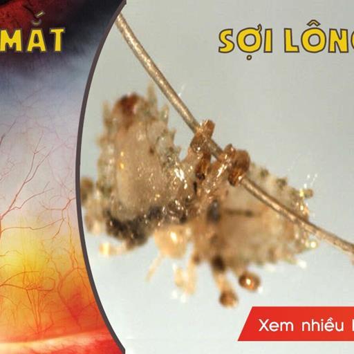 Soi 'kì quan cơ thể người' hiện hình dưới kính hiển vi, nhiều cái nom hết hồn thật sự!